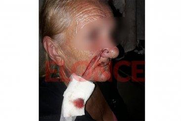 """VIDEO: Disparos, agresiones y una mujer herida con un """"machete"""" en Paraná"""